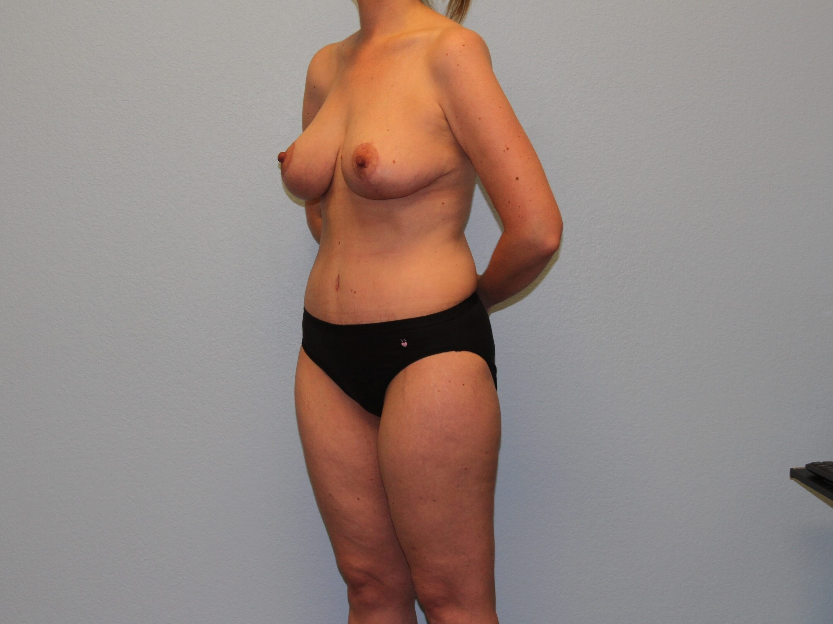 Oblique View 10 Weeks Post-op