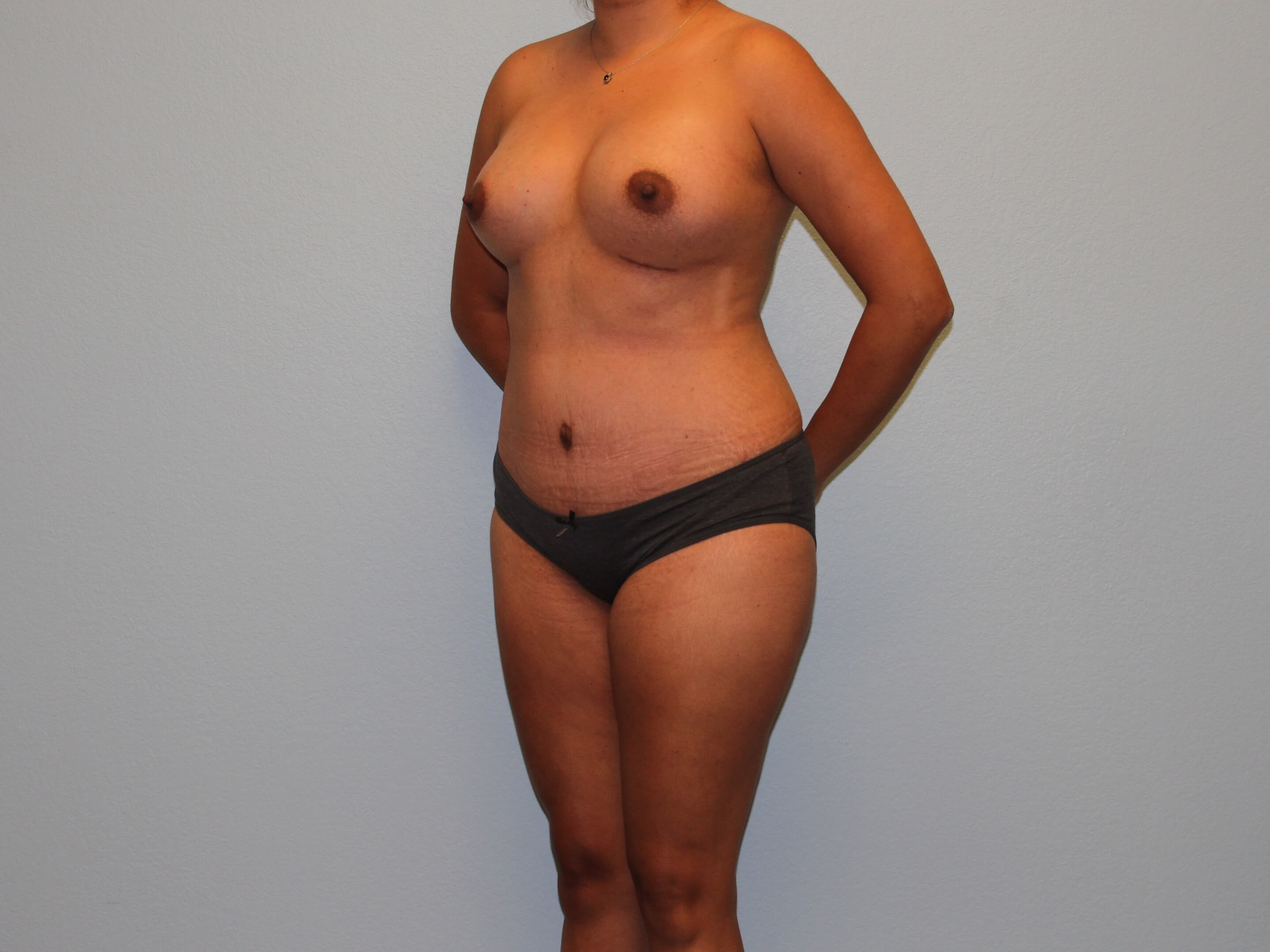 Oblique View Post-op 3 Months