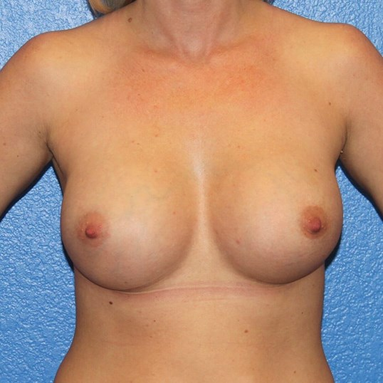 View 1 2 months post-op