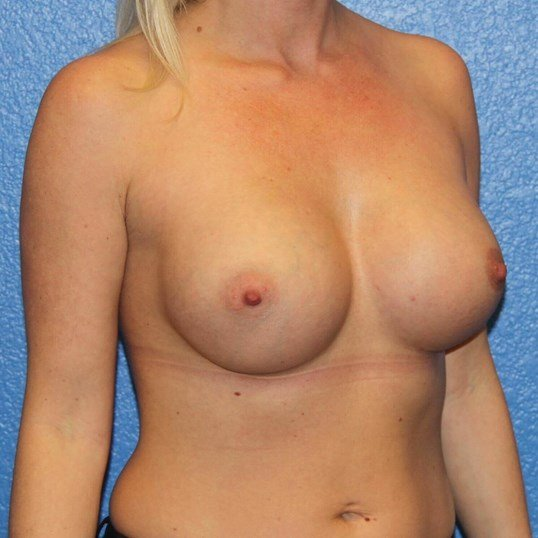 View 2 2 months post-op