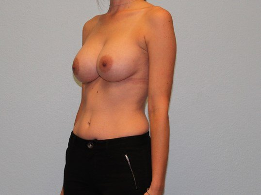Oblique View Post-op 2 Months